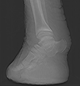 "X-ray image of an elephant's foot. Picture from ""What's in John's freezer?"""